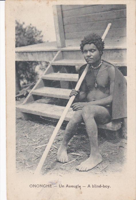 A Blind-Boy, ONONGHE, Papua New Guinea, 1910-1920s