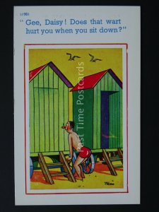 Peeping Tom & Bathing Hut DOES THAT WARD HURT Comic Postcard by Brook Co Ltd