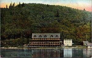 Canada Lake New York Auskerada Hotel Scenic View Antique Postcard J66185