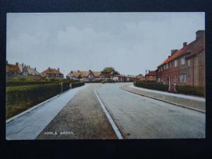 London Dagenham Chadwell Heath ANGLE GREEN Burnside Road - Old Postcard
