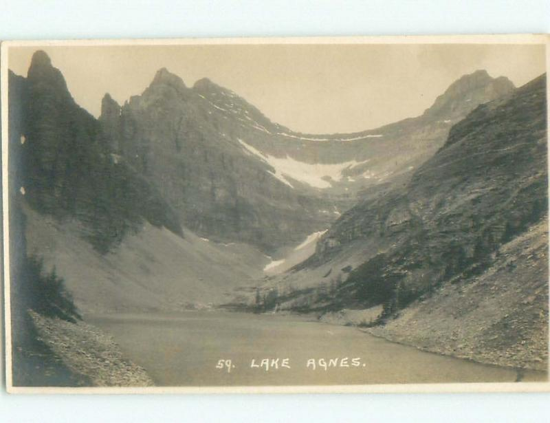 Pre-1949 rppc NICE VIEW Lake Agnes In Banff National Park Alberta AB W1048