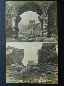 WW1 WHITBY ABBEY WEST END Before & After 1914 German Bombardment c1915 RP PC