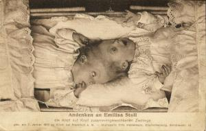 Conjoined Siamese Head-to-Head Twins Emilisa Stoll (1912) Freak Postcard