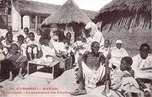 Ethiopia Harar, Le pansement des Lepreux