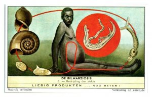 Fight this Disease, Schistosomiasis Bilharziosis Liebig Belgian Trade Card