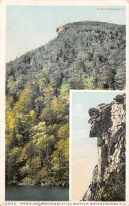 Profile Lake~Det Publ #12504 Old Man of the Mountain (It Fell)~Inset Close c1910