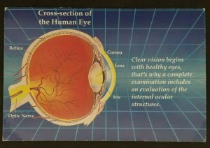 1984 Anguilla Cross Section Human Eye Optician Advertising Color Postcard Cover