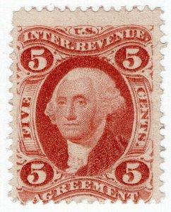 (I.B) US Revenue : Agreement 5c
