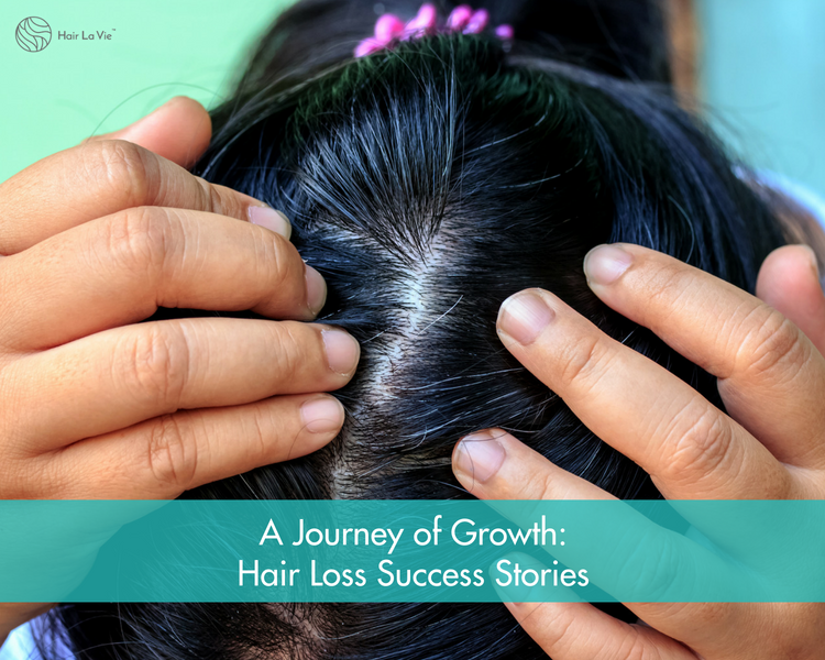 How I Grew My Hair Back: Women's Hair Loss & Regrowth Success Stories