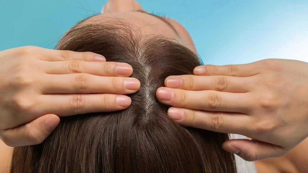 What does a healthy scalp look like?