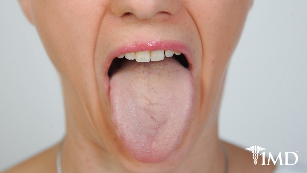 Why Your Tongue Is Yellow and Tips on How to Change It Back
