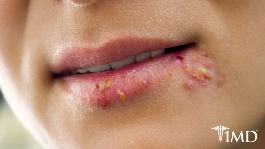 Cold Sores: The Causes and Symptoms + How to Prevent and Treat Them