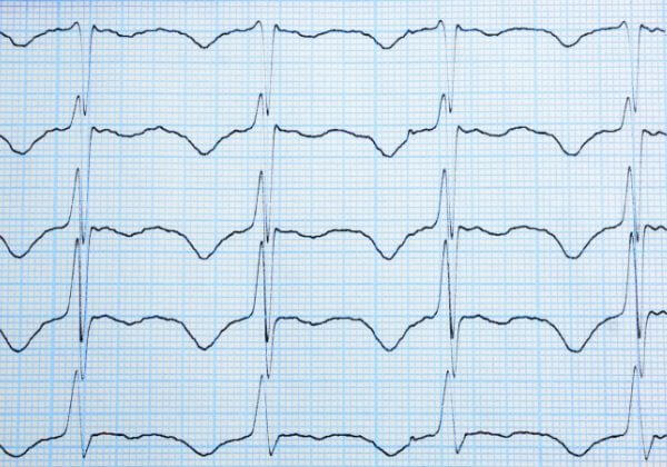 What Is an Irregular Heartbeat?
