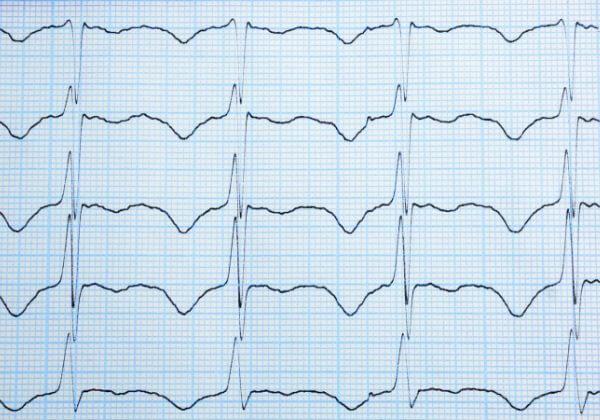 Irregular Heartbeat Symptoms - Heart Symptoms - 1MD