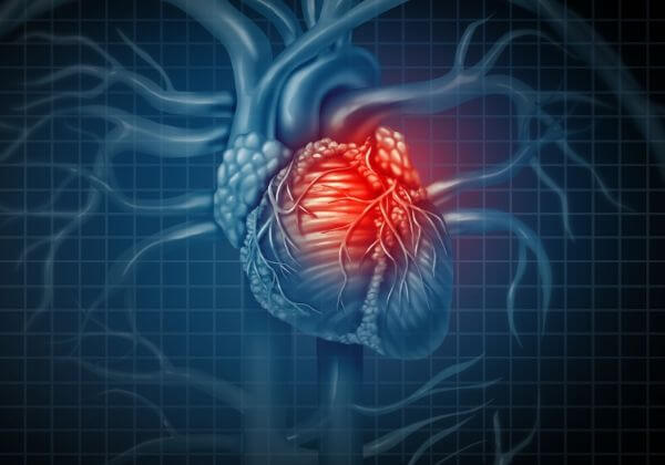 Heart Attack: Symptoms, Treatment, and Long-Term Outlook