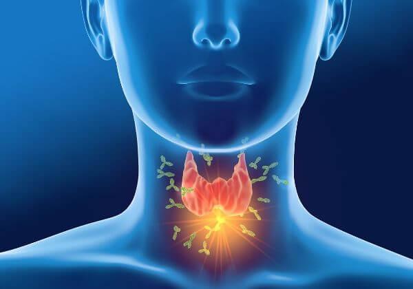 What Is Autoimmune Disease - Digestion - 1MD