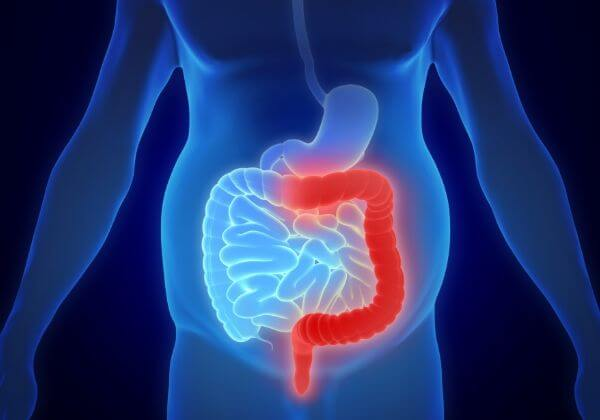 What Is Inflammatory Bowel Disease?