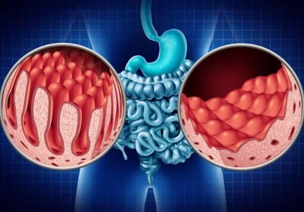 What Is Celiac Disease - Immunity - 1MD