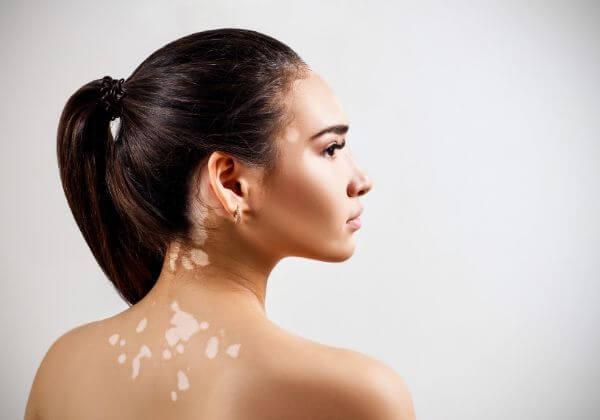 Rare Autoimmune Diseases - Joint - 1MD