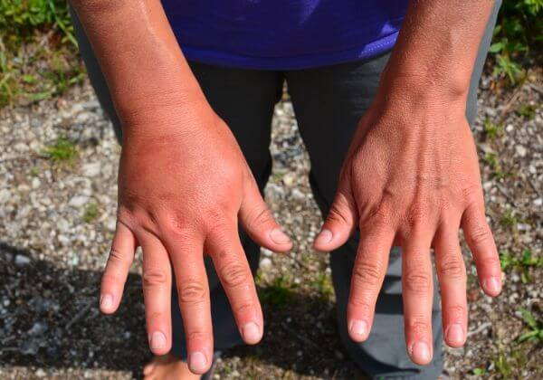 What Is Psoriatic Arthritis - Joint - 1MD