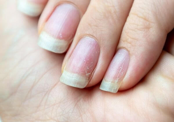 What Causes Brittle Fingernails?
