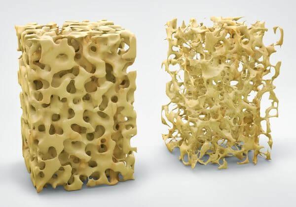 Brittle Bone Disease: Symptoms, Diagnosis, and Variations