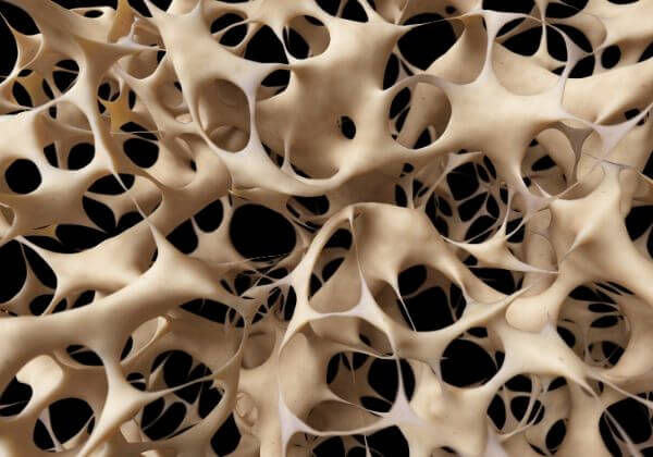 Osteoporosis: Symptoms, Treatments, and Long-Term Outlook