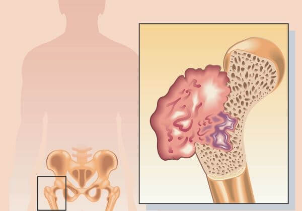 Osteosarcoma: Causes, Symptoms, and Natural Treatments