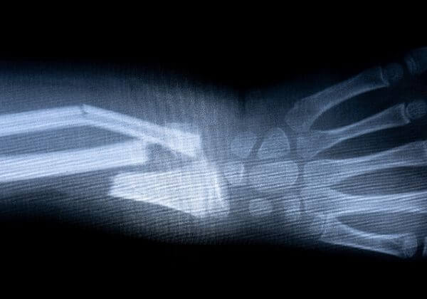 Paget's Disease of Bone: Symptoms, Diet, and Long-Term Outlook
