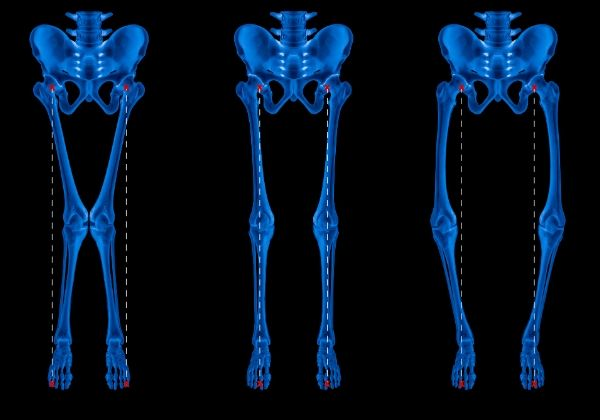 Rickets: Causes, Symptoms, and Long-Term Outlook
