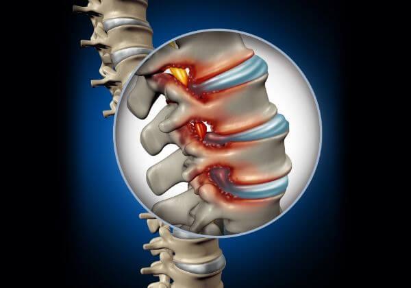 Spinal Stenosis: Symptoms, Diagnosis, and Variations