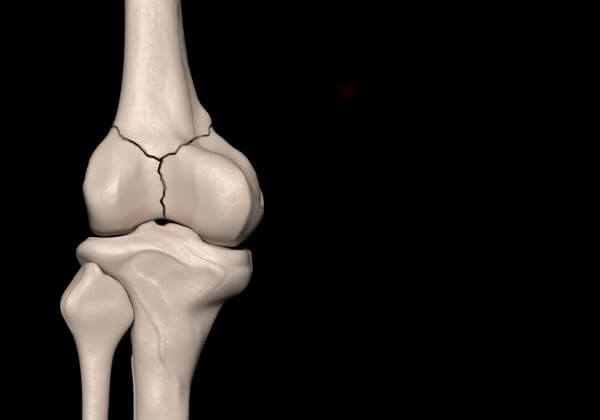 Bone Fracture: Causes, Types of Fractures, and Outlook
