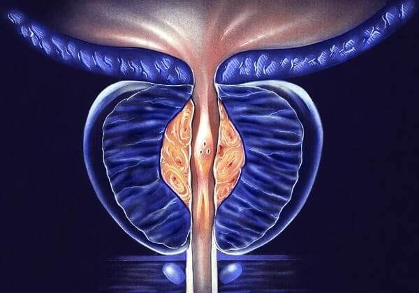 Prostatitis: Symptoms, Diet, and Long-Term Outlook