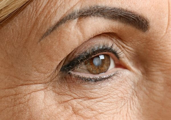 Cataracts: Causes, Treatments, and Long-Term Outlook