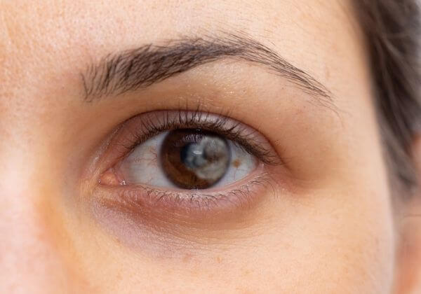 Cloudy Lens: Symptoms, Associated Diseases, and Treatment