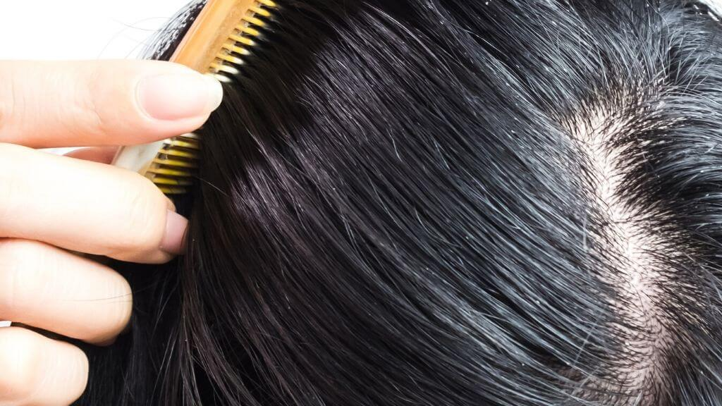 5 easy tricks for combating an oily scalp and greasy-looking roots
