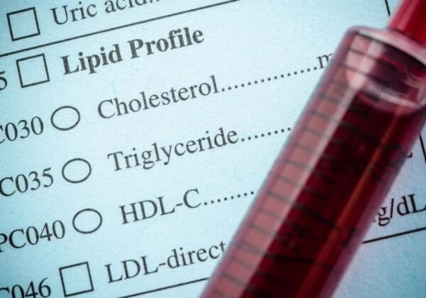 High Cholesterol: Symptoms, Causes, and Diet as Treatment