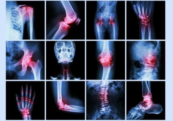 Proper Doctor Evaluation of Joint Function & What the Results Mean