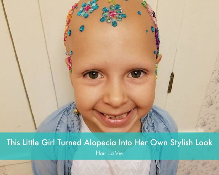 Adorable Girl With Alopecia Rocks Her Hairless Style At School