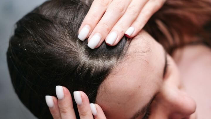 Woman showing her scalp issues