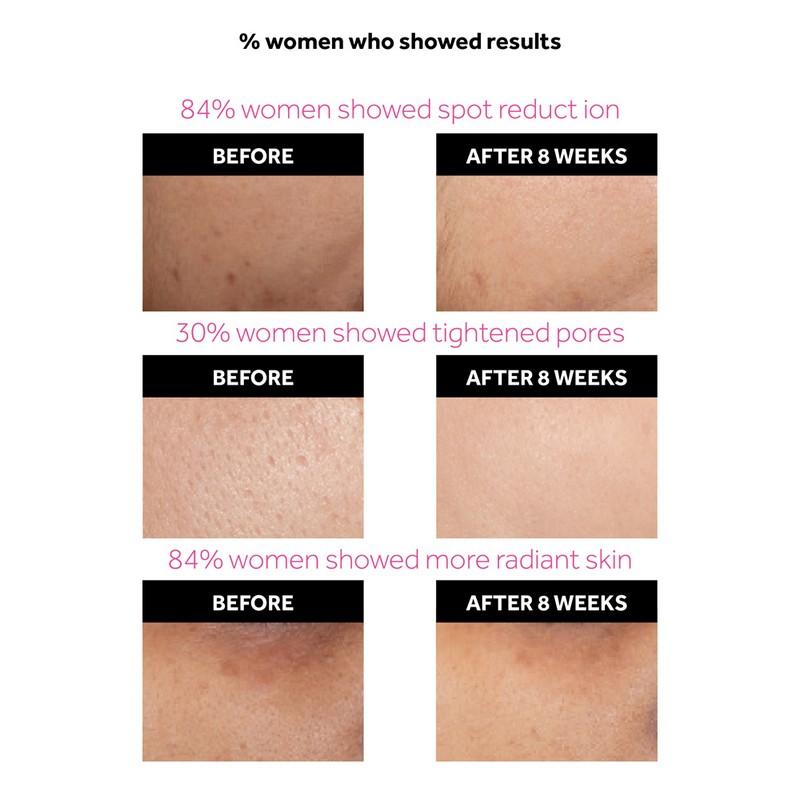 POND'S Flawless Radiance Derma+ Mattifying Day Cream SPF15 PA++ 50gm