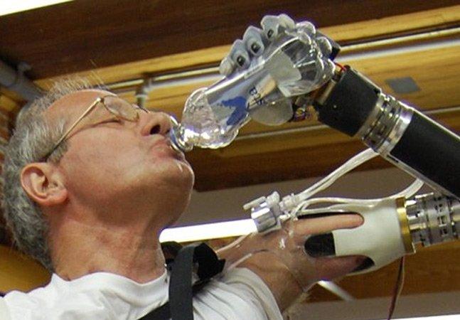 Conheça o primeiro braço protético capaz de executar tarefas complexas