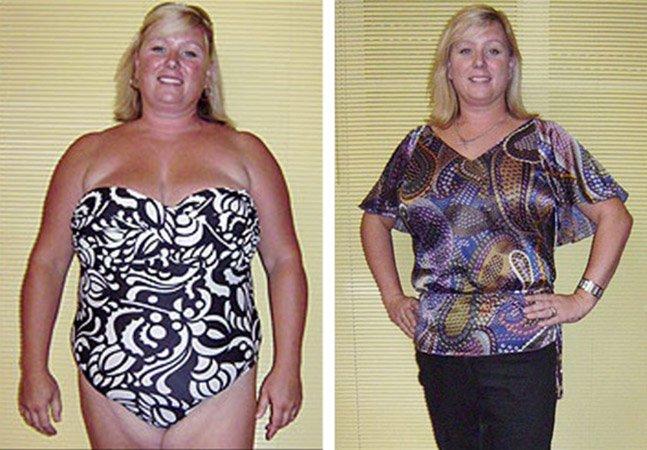 A história da inglesa que teria perdido 25 kg por meio de hipnose