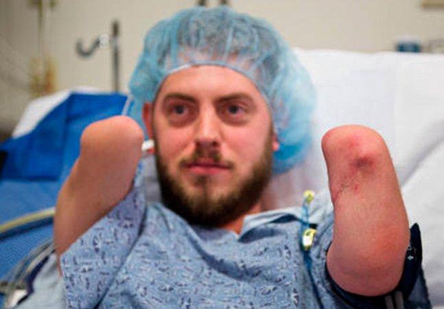 Ele ganhou braços novos em folha depois de 13 horas de cirurgia