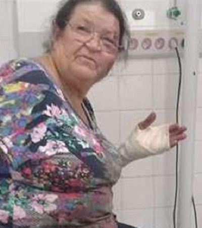Internet faz vaquinha para ajudar idosa arrastada por carro no DF
