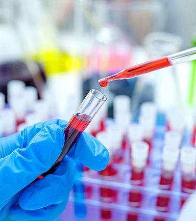 Unifesp diz que paciente está há 17 meses sem HIV em estudo inédito e histórico