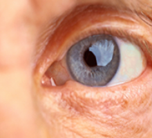 Especialista esclarece dúvidas sobre a degeneração macular relacionada à idade