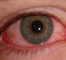 Síndrome do Olho Vermelho cresce 20% no Verão