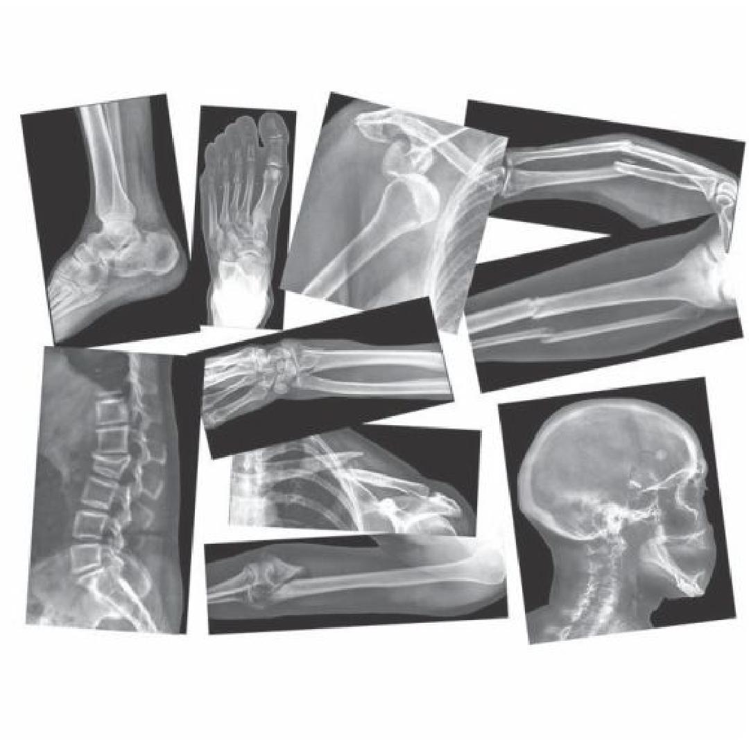 Broken Bones X-Rays (15pcs)
