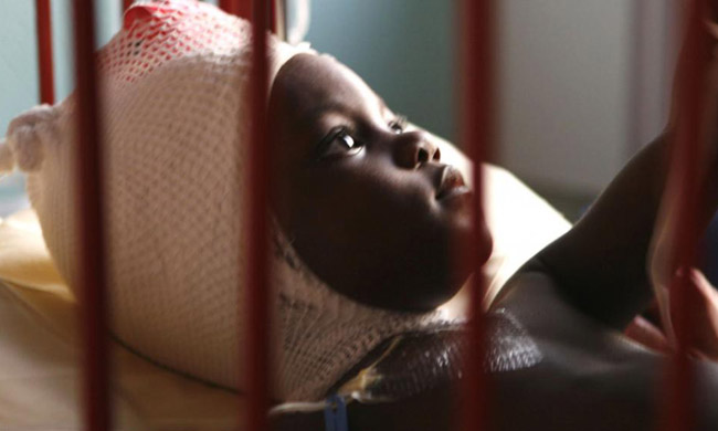 Nearly 80% of cases of fever at children under 5 years old in the DRC, according to the Pnlp